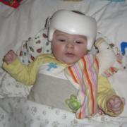 Ein Kind mit Therapiehelm