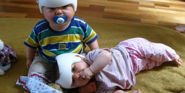 Zwei Kinder mit einem Therapiehelm